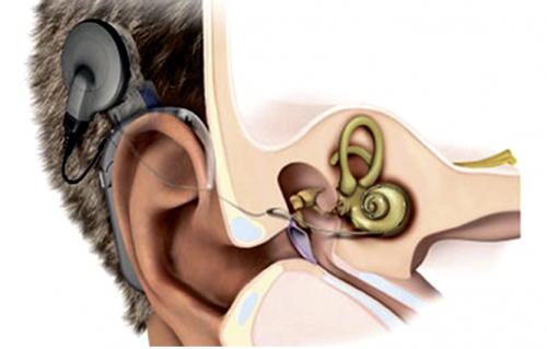 Tipperary surgeon restores hearing